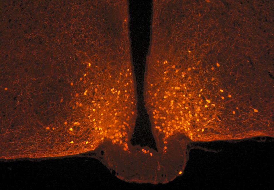 photo au microscope