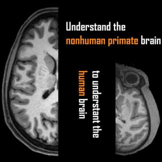 9413d679eab78c Open science  International data exchange for sharing primate neuroimaging  datasets